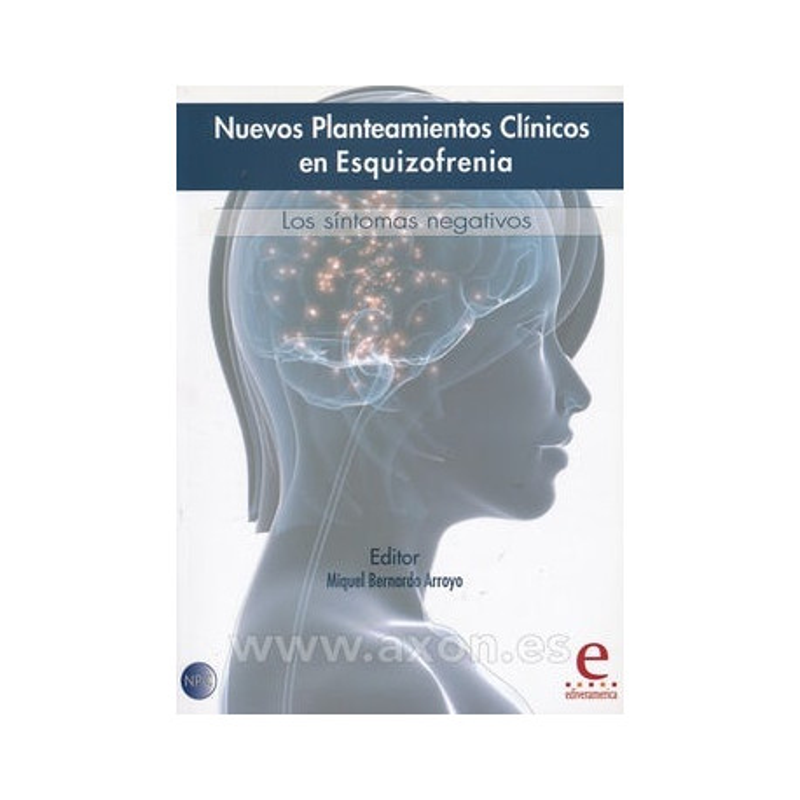 Nuevos planteamientos clínicos en esquizofrenia